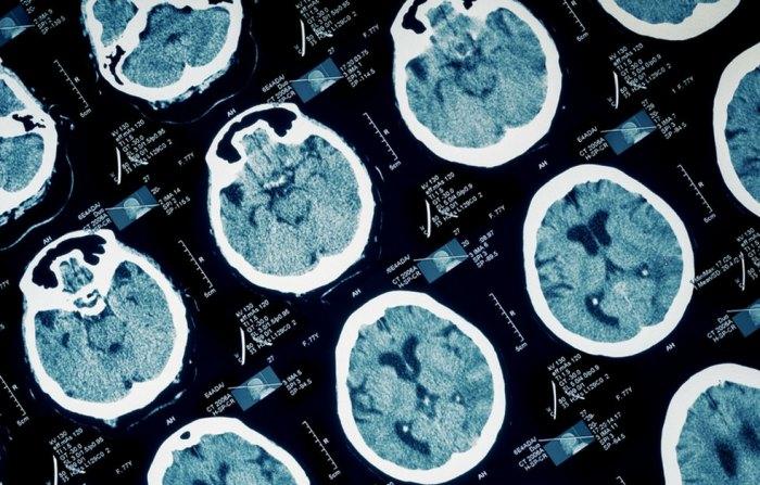 Как жалобы перенастраивают ваш мозг на негатив [и влияют на здоровье]